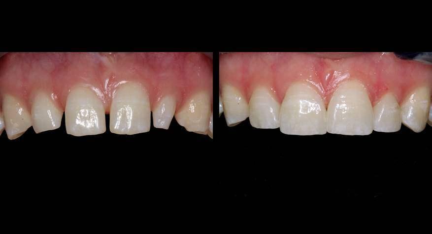 Zahnaesthetik